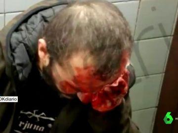 Herido un hombre que llevaba una bandera de España al ser empujado por las escaleras del metro de Barcelona