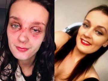La joven con quemaduras en el ojo
