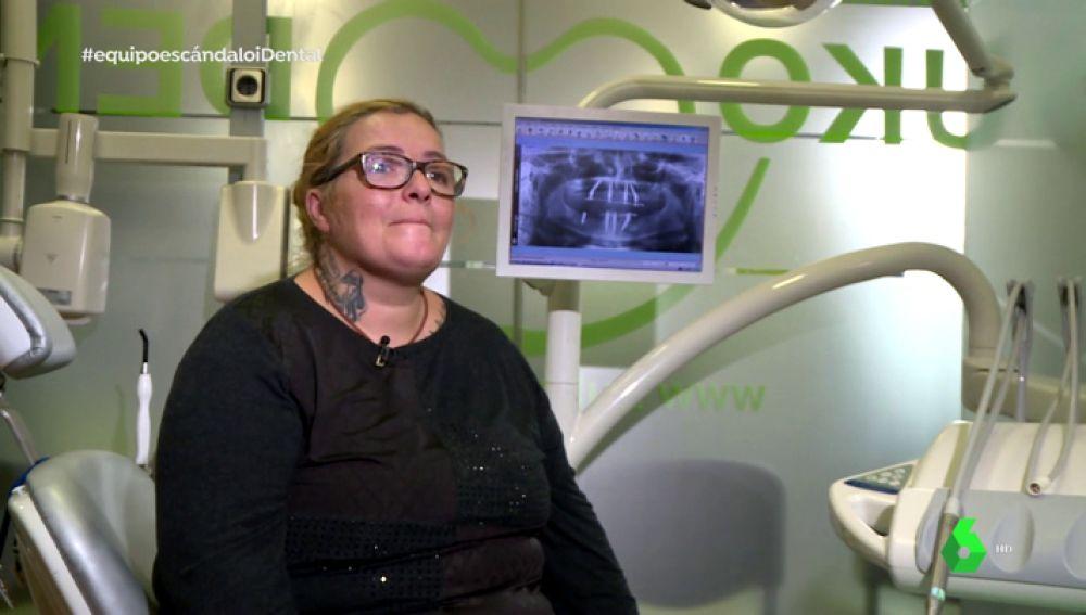 Una paciente que se sometió al tratamiento estrella de iDental