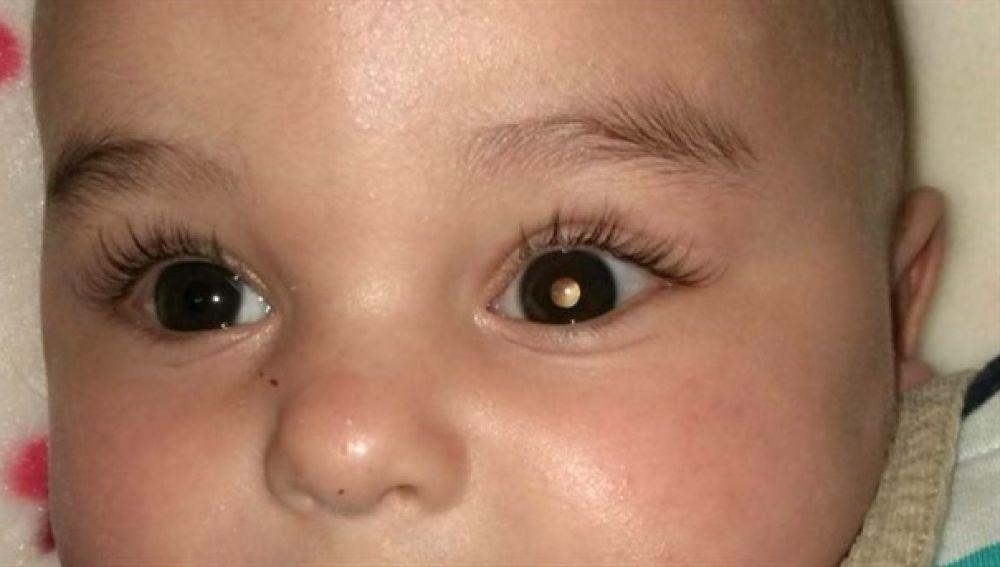 Bebé con cáncer de retina.