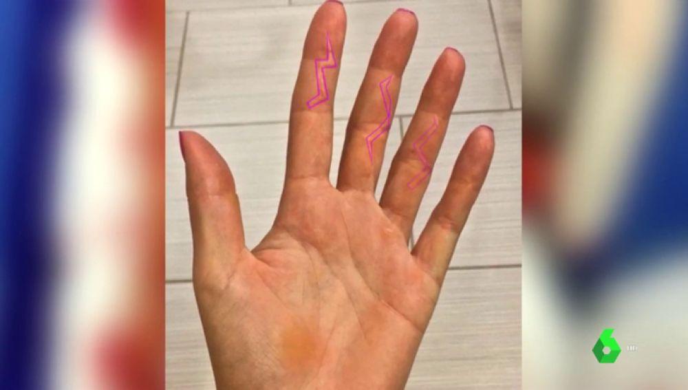 La historia de superación de Kvitova: de tener su mano destrozada por un atraco a jugar la final de Australia