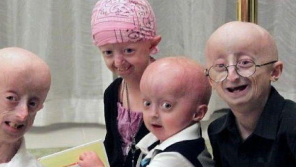 Varios pacientes con progeria