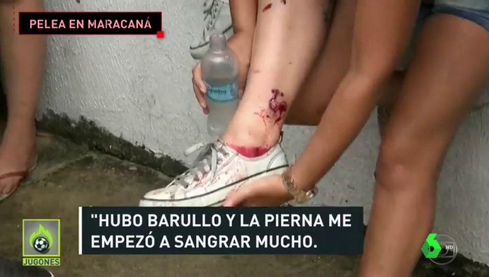 Serios incidentes en los aledaños de Maracaná: balas de goma, gas pimienta, batalla campal...