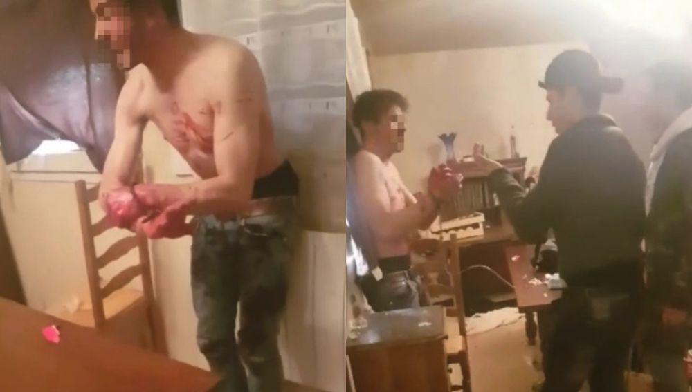 Imágenes de la tortura en Lyon