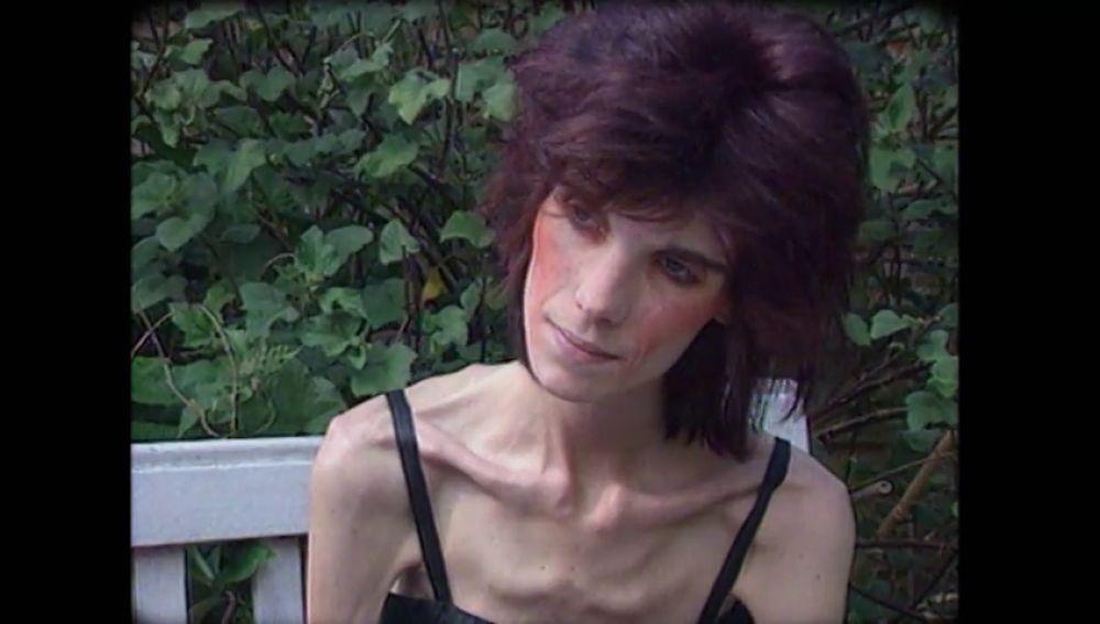 """Así se trataba la anorexia en los años 90: """"Le dijeron a mi madre que no tenía ningún problema, que lo único que pasaba es que no comía bien"""""""