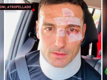 Un coche atropella al seleccionador argentino Lionel Scaloni cuando iba en bicicleta por Mallorca