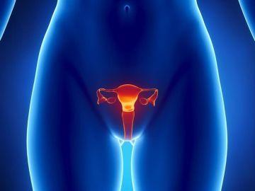 Cáncer de endometrio (Archivo)