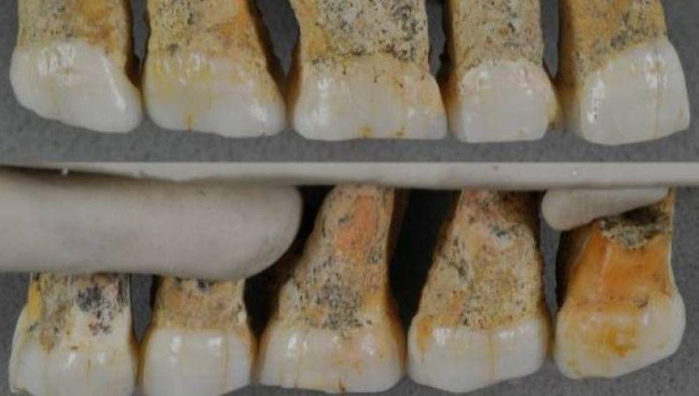 Dentadura del Homo luzonensis