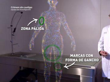 Unas marcas pálidas, la comida en su estómago, el semen… las claves de la autopsia de Déborah Fernández