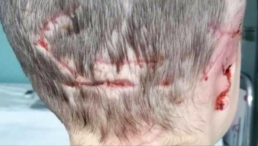 Una menor de cinco años ha perdido la oreja derecha después de sufrir el ataque de un labrador