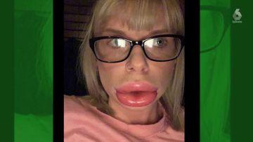 Utiliza un tratamiento para agrandarse los labios y acaba con la boca desfigurada