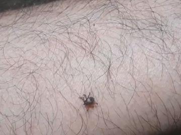 Imagen de una garrapata en un brazo