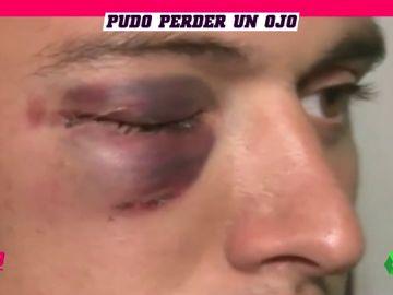 Salvaje agresión a un portero: puñetazo a traición en la cara que casi le hace perder la vista