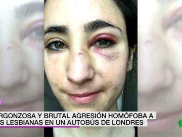 """Un grupo de jóvenes propina una brutal paliza a dos lesbianas en Londres: """"Solo veía mi sangre"""""""