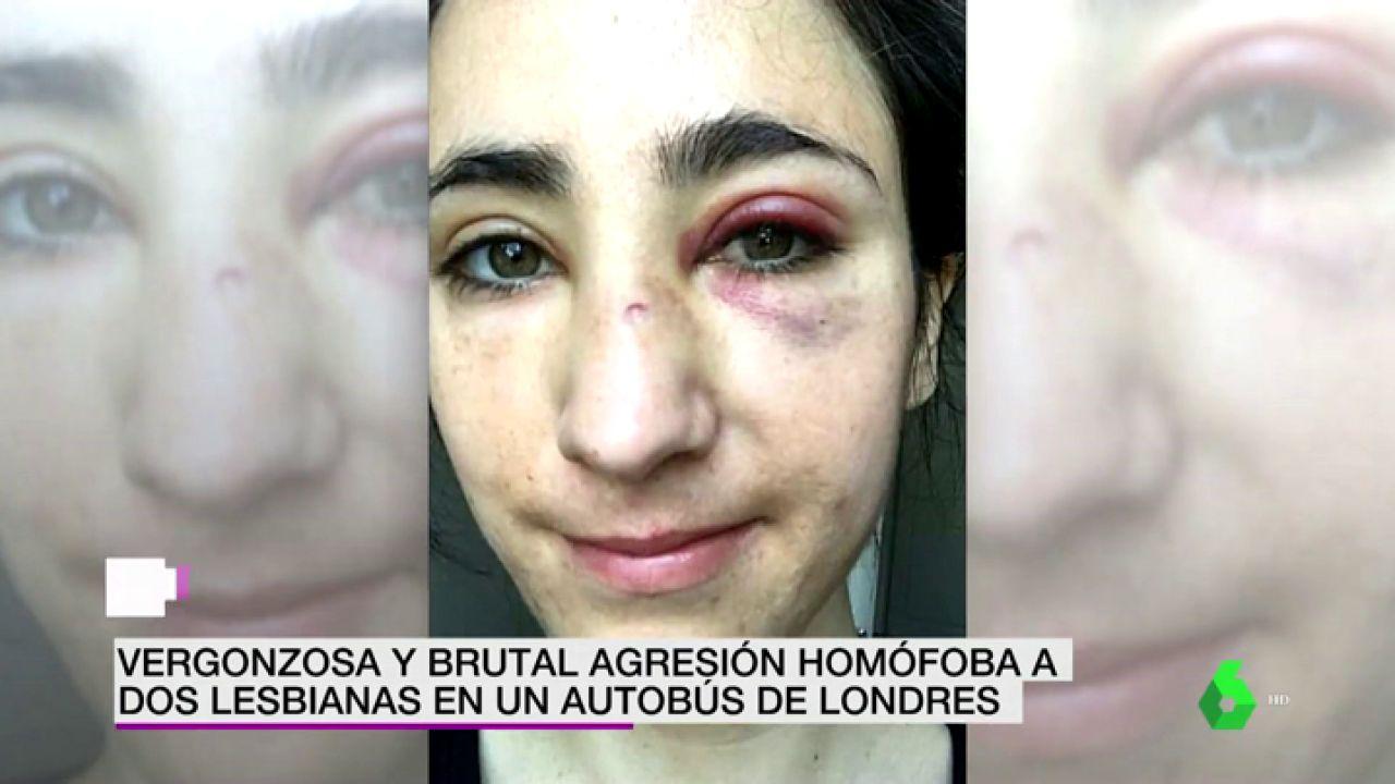 Un Grupo De Jovenes Propina Una Brutal Paliza A Dos Lesbianas En
