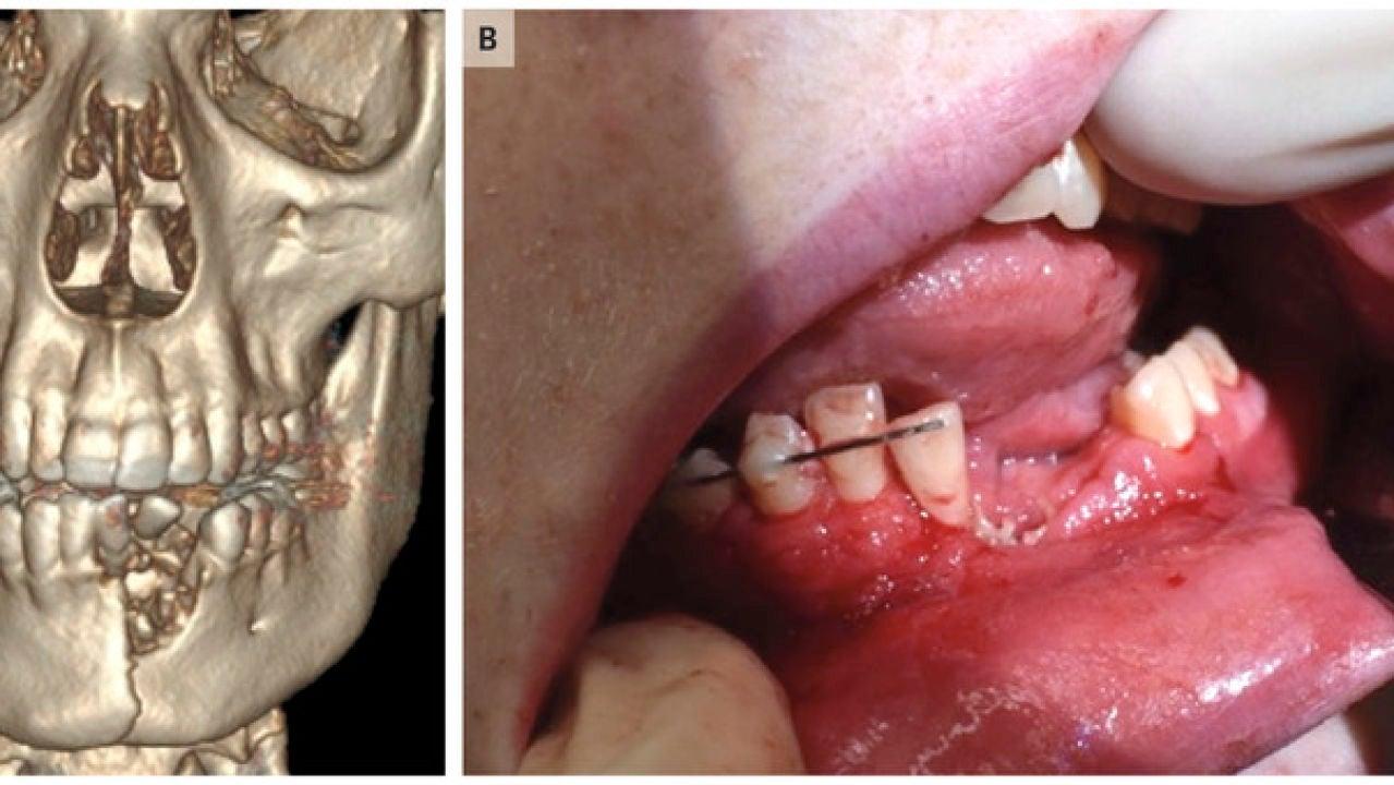 Imagen de las lesiones que le causó el cigarrillo electrónico