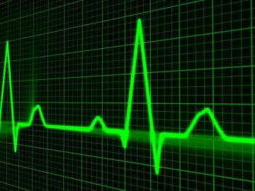 Pulso cardiaco