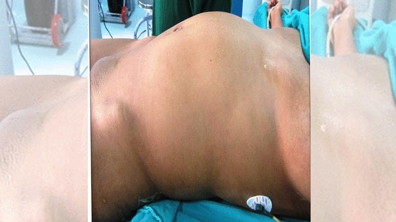 El bulto en el abdomen de la paciente con 'fetus in fetu'