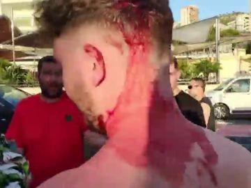 La herida provocada por la agresión de los trileros