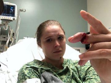 Ronda Rousey, cerca de perder un dedo