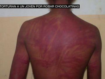 Latigazos y amenazas de muerte: graban la brutal tortura a un menor por robar chocolatinas
