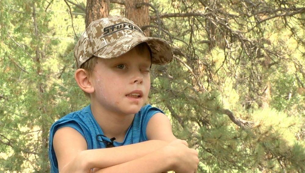 Pike, un niño de ocho años, logra sobrevivir al ataque de un puma