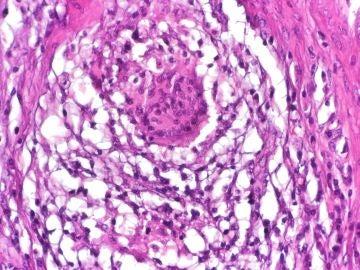 Un farmaco para tratar las fistulas de Crohn con celulas madre de donantes
