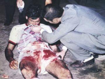 Néstor Combin, jugador del Milán que acabó el partido con la nariz y el pómulo rotos en 1969
