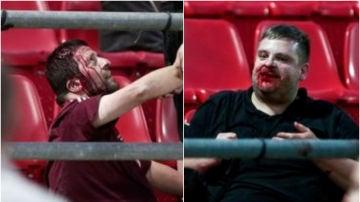 Hinchas del Bayern, heridos gravemente en la grada