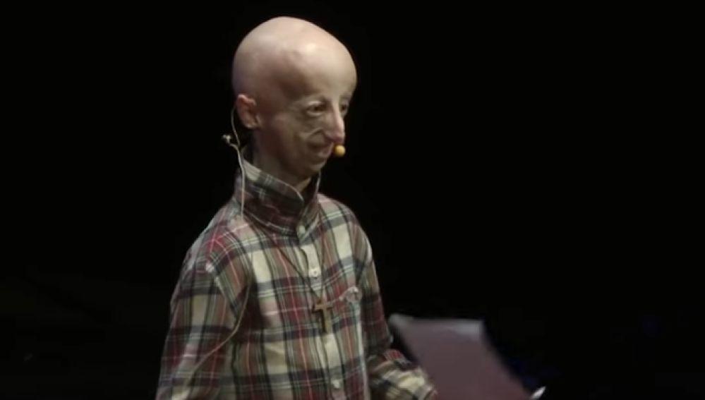 Sammy Basso, enfermo de progeria, durante una charla TedX
