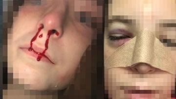 La menor agredida en un instituto de Jerez