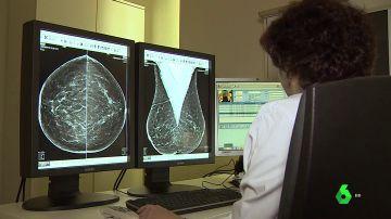 Así luchan en el CNIO contra el cáncer de mama: ocho de cada diez personas logran curarse gracias a los avances