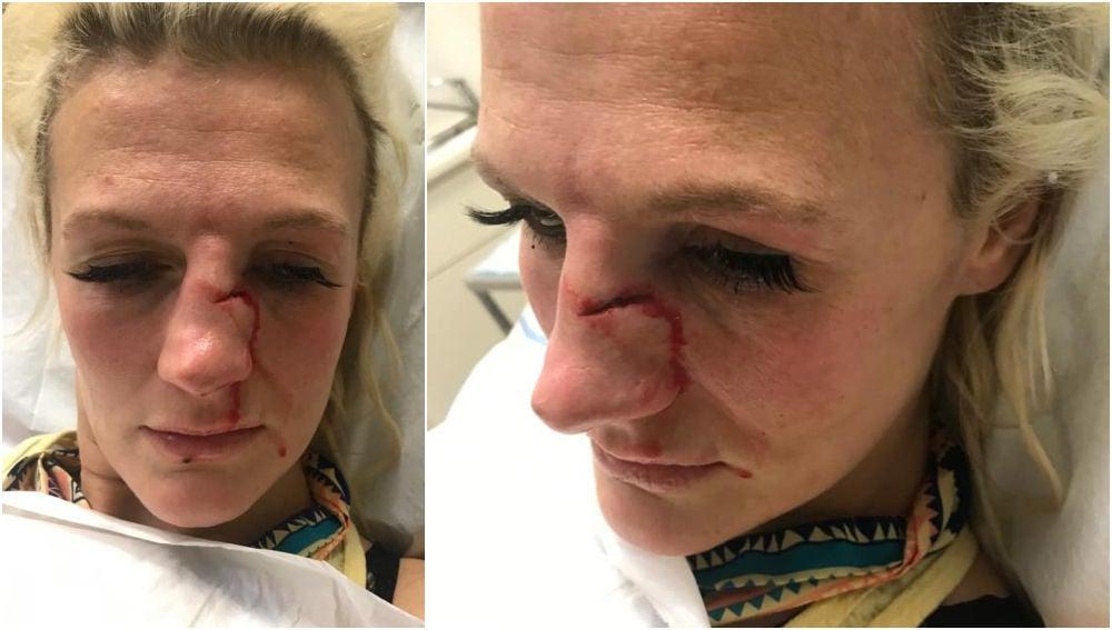 Cindy Dandois, tras sufrir una agresión por parte de su exnovio