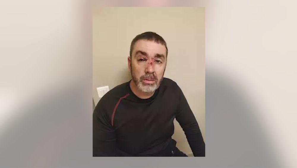 Uno de los vigilantes de seguridad agredidos durante la pelea en la Renfe.