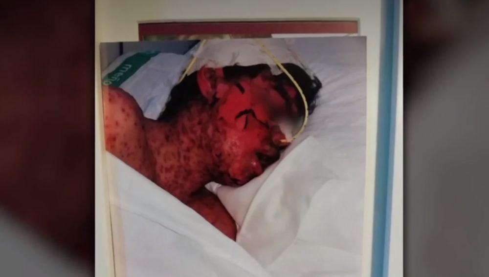 Lucas, abrasado tras una negligencia médica en Cáceres