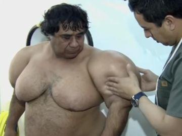 El buzo Alejandro Ramos, tratándose sus deformidades