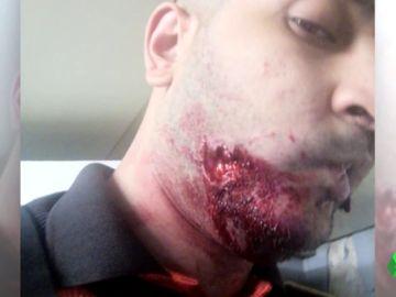 Muerden brutalmente a un vigilante del Metro de Barcelona