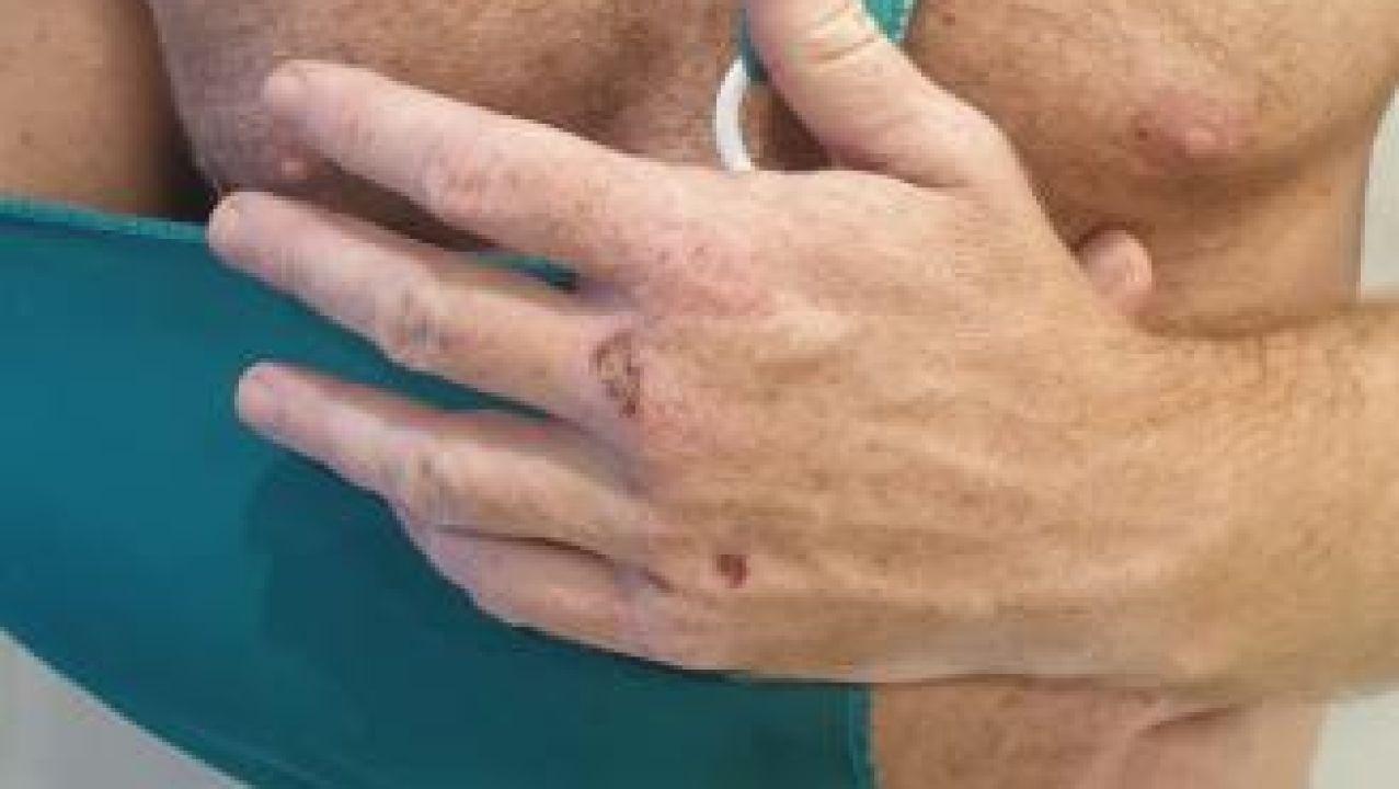 Una de las víctimas de la agresión homófoba en Torremolinos
