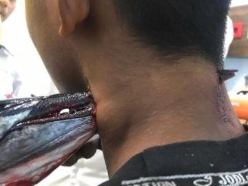 Un pez espada atraviesa el cuello de un joven