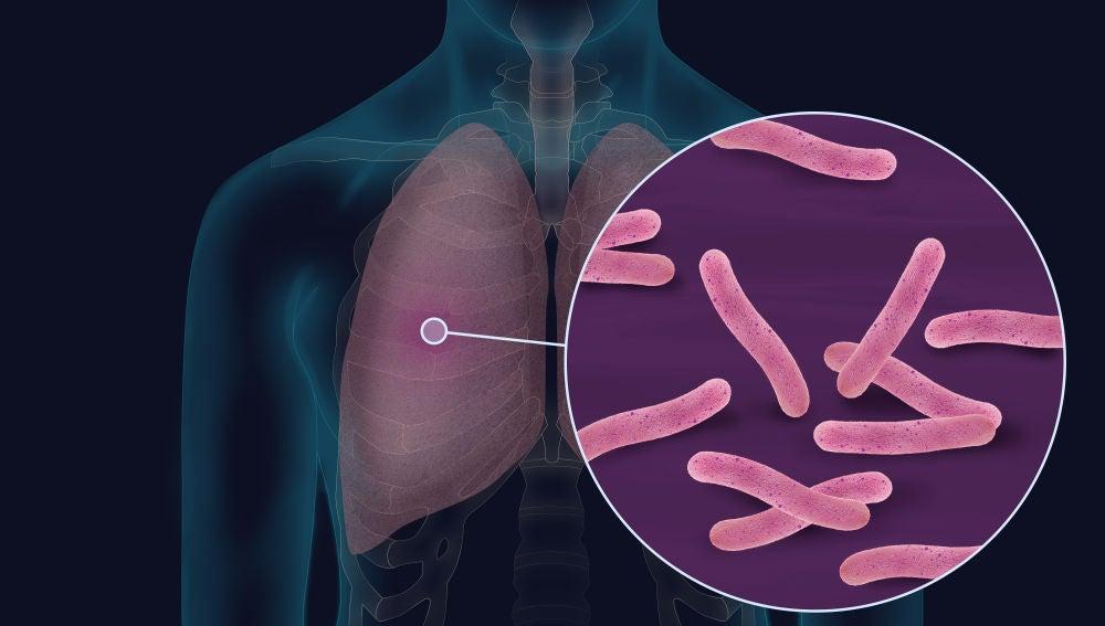 Imagen de la bacteria Mycobacterium tuberculosis