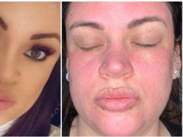 Candice antes y después de usar la crema