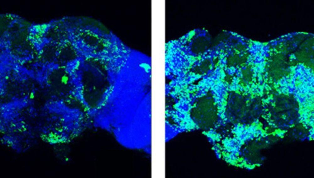 Nuevo mecanismo para frenar la perdida de sinapsis en el alzheimer
