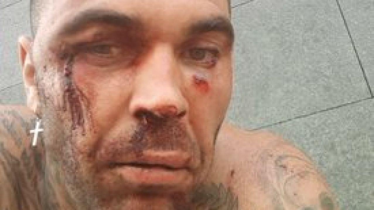 El ultra del Betis que agredió a un ciudadano bilbaíno sufre una paliza durante el carnaval de Tenerife