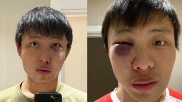 Jonathan Mok, víctima de agresión racista