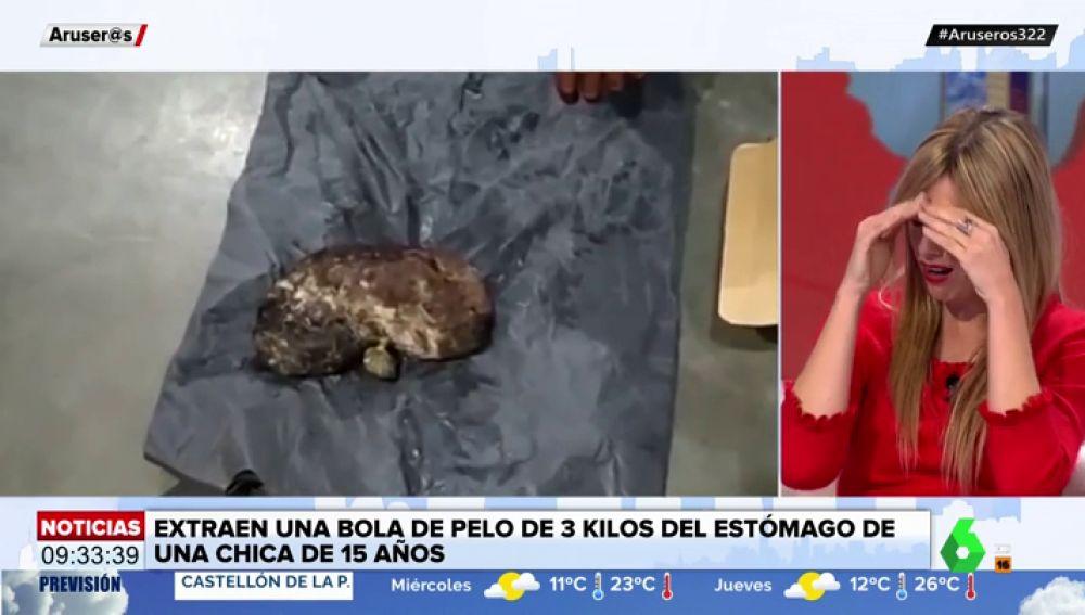 Las escalofriantes imágenes de la bola de pelo de tres kilos que una chica tenía en su estómago