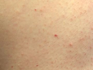 Puntos rojos en la piel