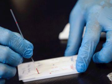 Imagen de archivo de un test serológico