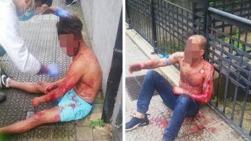 Dos hombres heridos tras una salvaje pelea en Bilbao