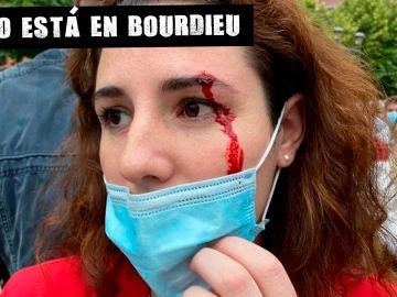 Rocío de Meer (Vox), herida en Sestao