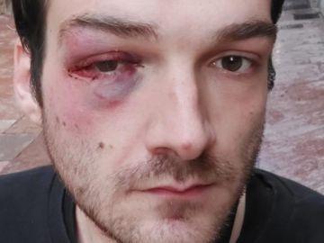 Kiko muestra su cara después de la agresión homófoba que ha sufrido en Oviedo
